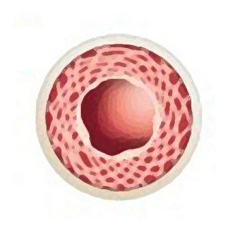 Arteriosklerose Risikoprofil Beitragsbild 350x350 - Naturheilkunde