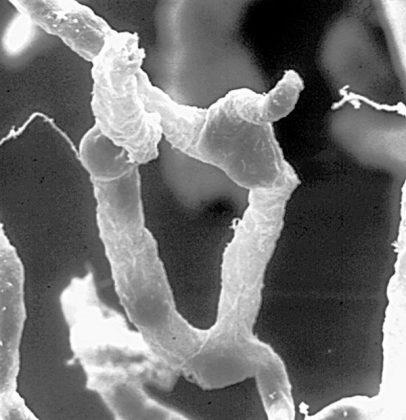 Kapillaren Gehirn hat Lymphbahnen 406x420 - Naturheilkunde