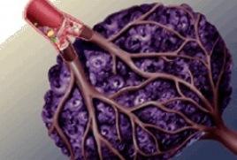 Prognosevorteil durch Tumor Oxygenisierung - Naturheilkunde