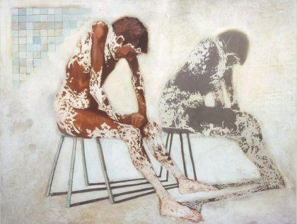 Vitiligo 420x316 - Naturheilkunde
