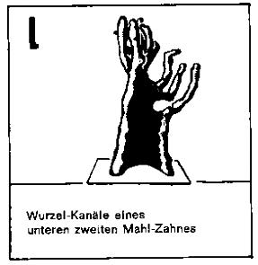 Zahnherde Mahlzahn - Naturheilkunde