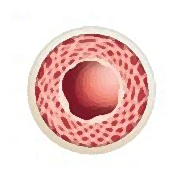 Arteriosklerose Risikoprofil