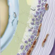 Knie Arthrose / Hüftarthrose